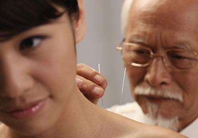 针灸治功能性不射精